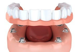 Animation of implant supported dentures