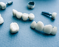 types of dental implants in Gorham on blue background