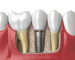 Diagram of dental implants in Gorham up close after surgery