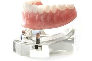 Lower denture being attached to implants