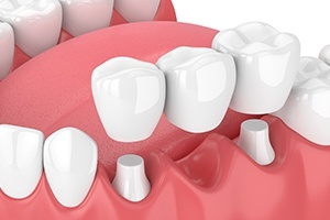 Animation of dental bridge placement