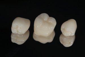 dental crowns in Gorham